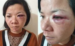 Chồng đánh vợ đêm mùng 2 Tết: Không phải lần đầu bạo hành