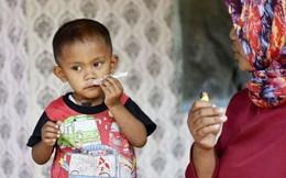 Bé trai 2 tuổi hút 40 điếu thuốc mỗi ngày bắt đầu cai thuốc