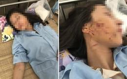 Vụ đổ nước mắm ớt lên người cô gái trẻ ở Thanh Hóa: Nạn nhân lên tiếng