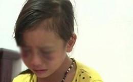 Cô giáo đánh bầm mặt học sinh bị buộc thôi việc