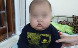 Cha mẹ tự mua thuốc trị ho, bé 17 tháng tuổi bị suy thượng thận cấp
