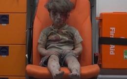 Cậu bé Syria bê bết máu khiến thế giới rơi lệ