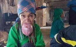 Người phụ nữ có u lưỡi che kín miệng sẽ được chữa bệnh