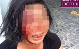 Người phụ nữ bị chồng khóa trái cửa đánh tàn nhẫn