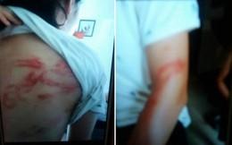 Hà Nội: Bà ngoại tố bố đẻ bạo hành dã man 2 cháu nhỏ