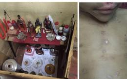 Cậu bé Brazil bị tra tấn mù mắt vì phải làm vật tế cho nghi lễ đen tối