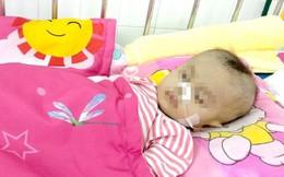 Cứu sống bệnh nhi 8 tháng tuổi đã bị ngưng tim