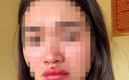 Nữ hành khách bị đánh khi đang chụp ảnh xe chở khách lạng lách, đánh võng