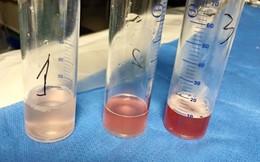 9 năm ho ra máu, căn bệnh hiếm của bé gái mới được tìm ra