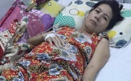 Nữ hành khách đi xe Phương Trang bị tai nạn phải cưa 1 chân, trách nhiệm bồi thường thế nào?
