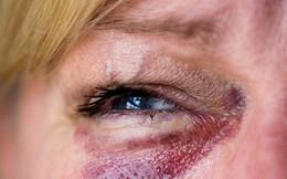 Anh: Tranh cãi về khóa học phòng chống bạo lực gia đình dành cho thủ phạm