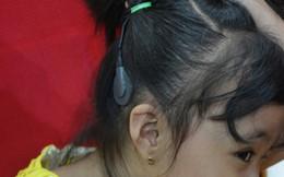 Muốn trẻ nói được sau cấy ốc tai điện tử, cha mẹ phải đồng hành