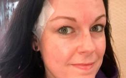 Nặn mụn, bà mẹ 2 con thủng thái dương vì ung thư da
