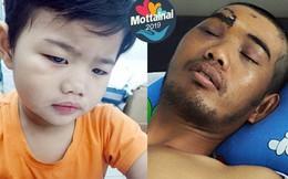 Người đàn ông bị dập não vì tai nạn giao thông 'Chỉ muốn mau lành để về với con'