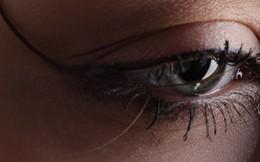'Bảo bối' chữa mắt sưng vô cùng đơn giản