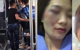 Truy tìm 4 thanh niên hành hung nữ phụ xe buýt đúng ngày 20/10