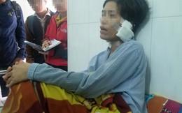 Lĩnh án tù vì bạo hành, cắt tai vợ cũ