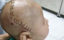 Bé 5 tháng tuổi bị dị tật hộp sọ hiếm gặp