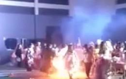 Hóa trang dự lễ hội Halloween, nữ sinh bốc cháy bỏng nặng