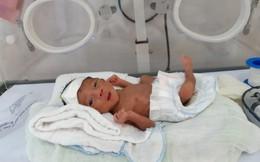 Bệnh viện đa khoa tuyến huyện cứu sống trẻ sinh non nặng 900g