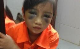Cô giáo đánh bầm mặt bé 6 tuổi vì viết chậm