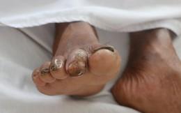 Phát hiện thêm nhiều bệnh nhân nhiễm vi khuẩn ăn thịt người