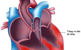 Bộ Y tế lên tiếng về virus lây lan bệnh Viêm cơ tim