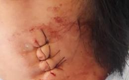 Vụ chẩn đoán viêm hạch, mổ không thấy hạch: Gia đình rút đơn khiếu nại