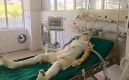 Vụ sát hại, đốt cả nhà người tình ở Sơn La: Nạn nhân nhỏ tuổi nhất đã tử vong