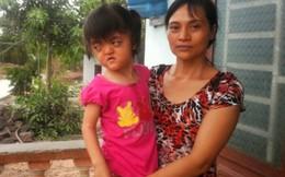 Bé gái 6 tuổi mang khuôn mặt bà lão