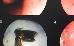 Cô gái phải nhập viện vì bị bướm chui vào mũi khi đi xe máy