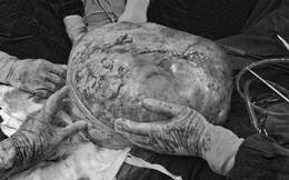 Cắt khối u buồng trứng nặng gần 30kg cho nữ bệnh nhân 78 tuổi