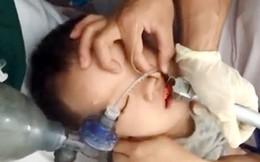 Bé 2 tuổi ngừng thở, ngừng tim do ăn thạch rau câu