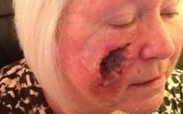 Quý bà bị thủng mặt vì nghiện tắm nắng