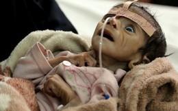 Yemen: 2,9 triệu phụ nữ và trẻ em đang sống dở chết dở vì đói