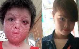 Cô gái xinh đẹp bị chồng đốt biến dạng mặt
