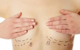 Hoang mang nâng ngực có thể gây ung thư