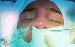Tiêm filler tại spa, cô gái 28 tuổi suýt mất mũi