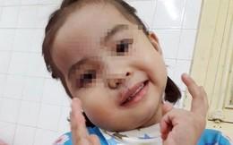 'Giải cứu' bé gái 4 tuổi khỏi u quái vùng mặt