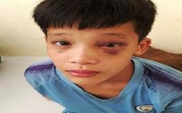 Săn cá bằng súng tự chế, bé 8 tuổi bị 3 đinh kim loại ghim vào hốc mắt