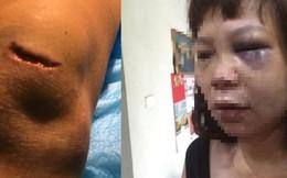 Quảng Ninh: Nữ hộ lý bị chồng lừa lên đồi đánh đập dã man, cắt gân
