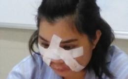 Tiêm mỡ tự thân tại spa, cô gái trẻ nhiễm khuẩn nguy hiểm