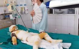Vụ 3 trẻ mầm non bị bỏng: Bộ Giáo dục yêu cầu làm rõ