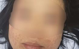 Sản phụ hoảng hốt khi bị xuất huyết dưới da vùng mặt sau khi sinh