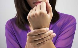 Hội chứng ống cổ tay ở nữ giới: Bệnh thường gặp ở tuổi từ 35