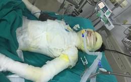 Gã trai tàn độc tẩm xăng đốt bạn gái bỏng 92% cơ thể