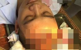 Cha bệnh nhi đánh bác sĩ vỡ đầu, khâu 7 mũi