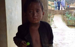 Cậu bé người Mông có nguy cơ hỏng cả 2 mắt