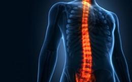 Hướng dẫn sơ cứu đúng cách với bệnh nhân bị chấn thương cột sống
