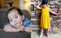 Bé gái có đôi mắt xanh thẳm sau 1 năm nhận nuôi đã có sự thay đổi ngoạn mục